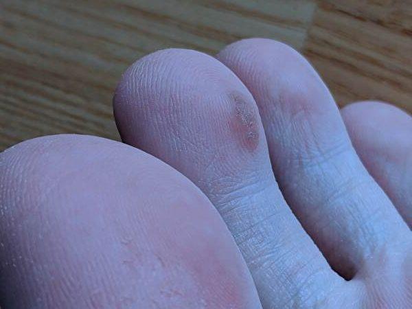 足指イボ2