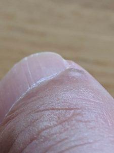 指先イボ爪側2